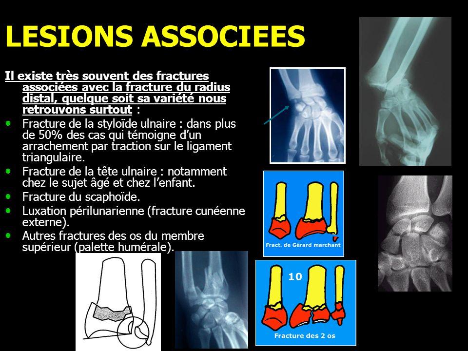 LESIONS ASSOCIEES Il existe très souvent des fractures associées avec la fracture du radius distal, quelque soit sa variété nous retrouvons surtout :