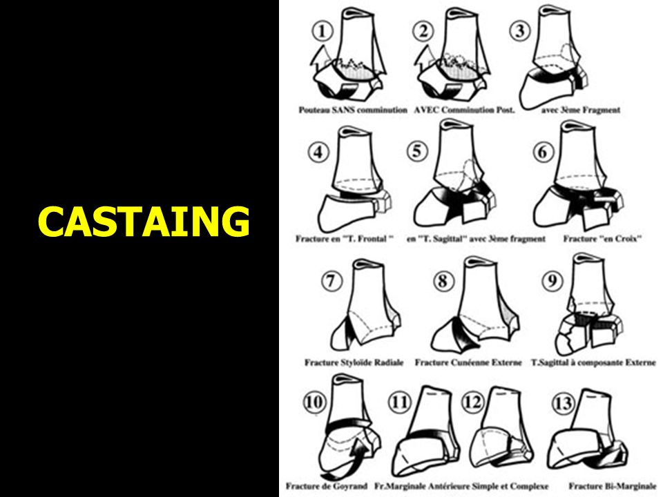 CASTAING