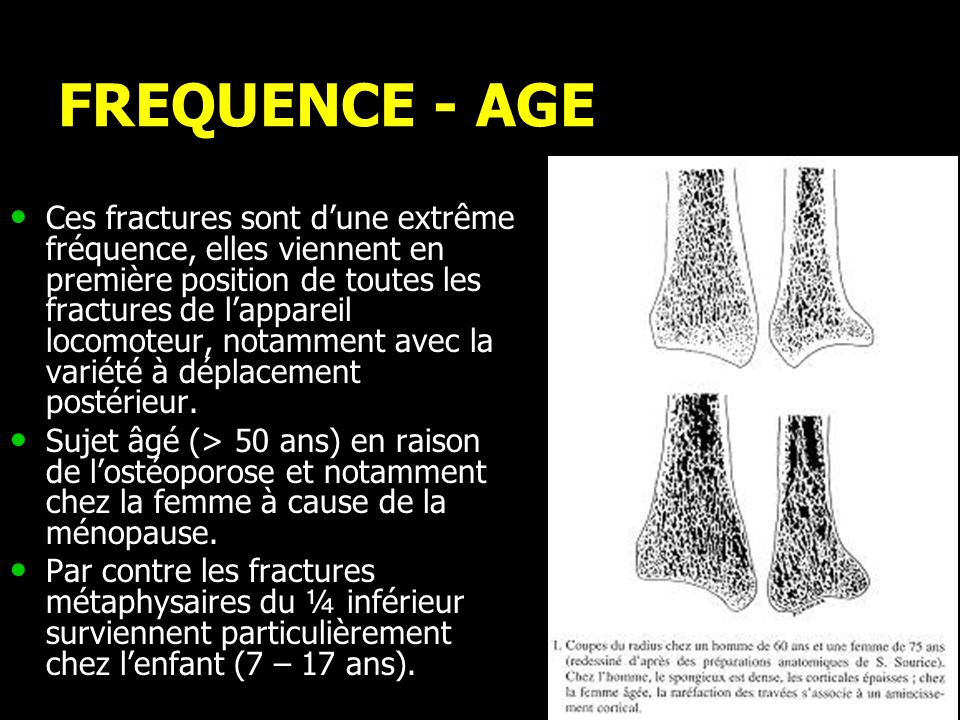 FREQUENCE - AGE