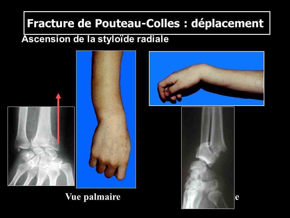 Fracture de Pouteau-Colles : déplacement