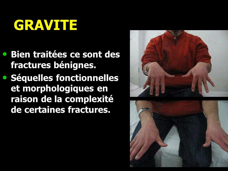 GRAVITE Bien traitées ce sont des fractures bénignes.