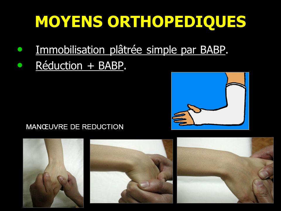 MOYENS ORTHOPEDIQUES Immobilisation plâtrée simple par BABP.