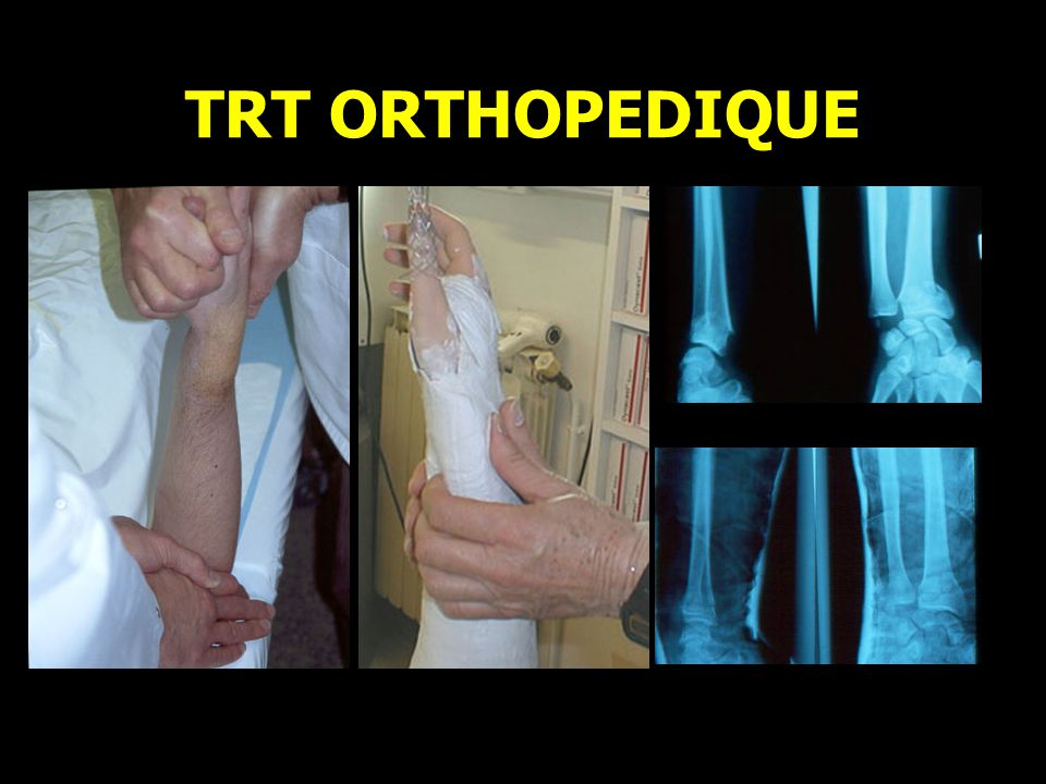 TRT ORTHOPEDIQUE