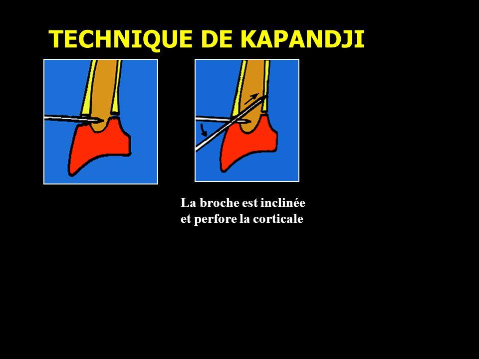 TECHNIQUE DE KAPANDJI La broche est inclinée et perfore la corticale