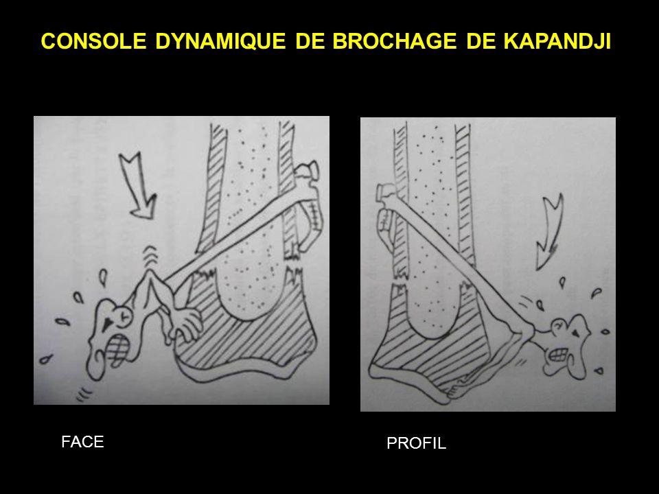 CONSOLE DYNAMIQUE DE BROCHAGE DE KAPANDJI