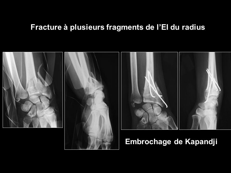 Fracture à plusieurs fragments de l'EI du radius