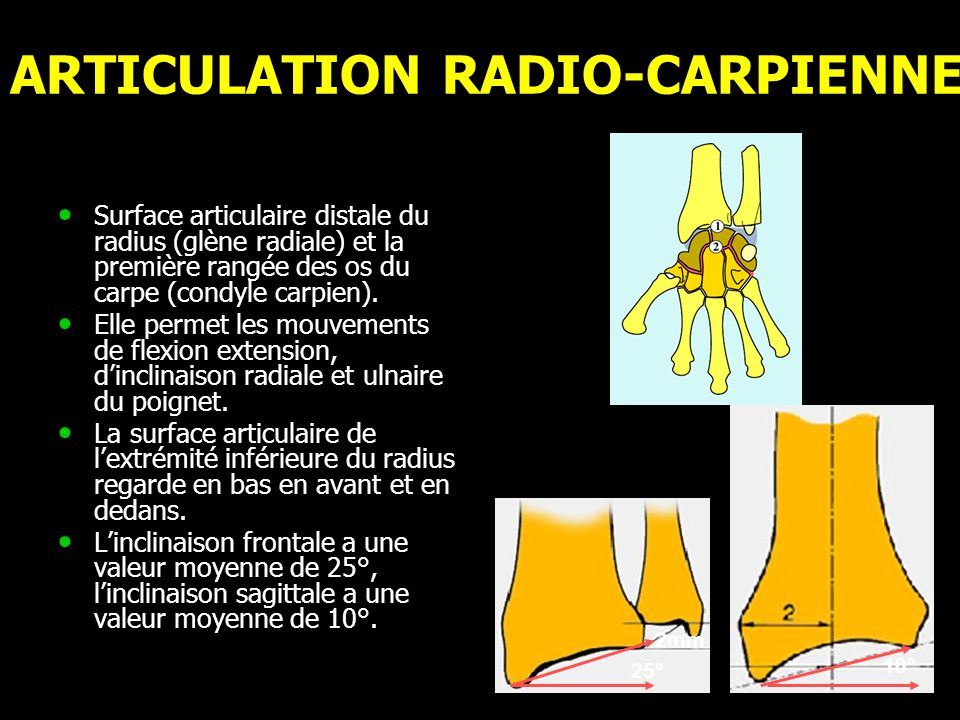 ARTICULATION RADIO-CARPIENNE