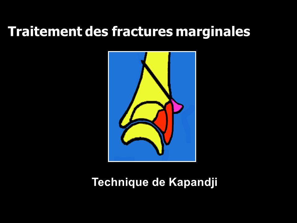 Traitement des fractures marginales