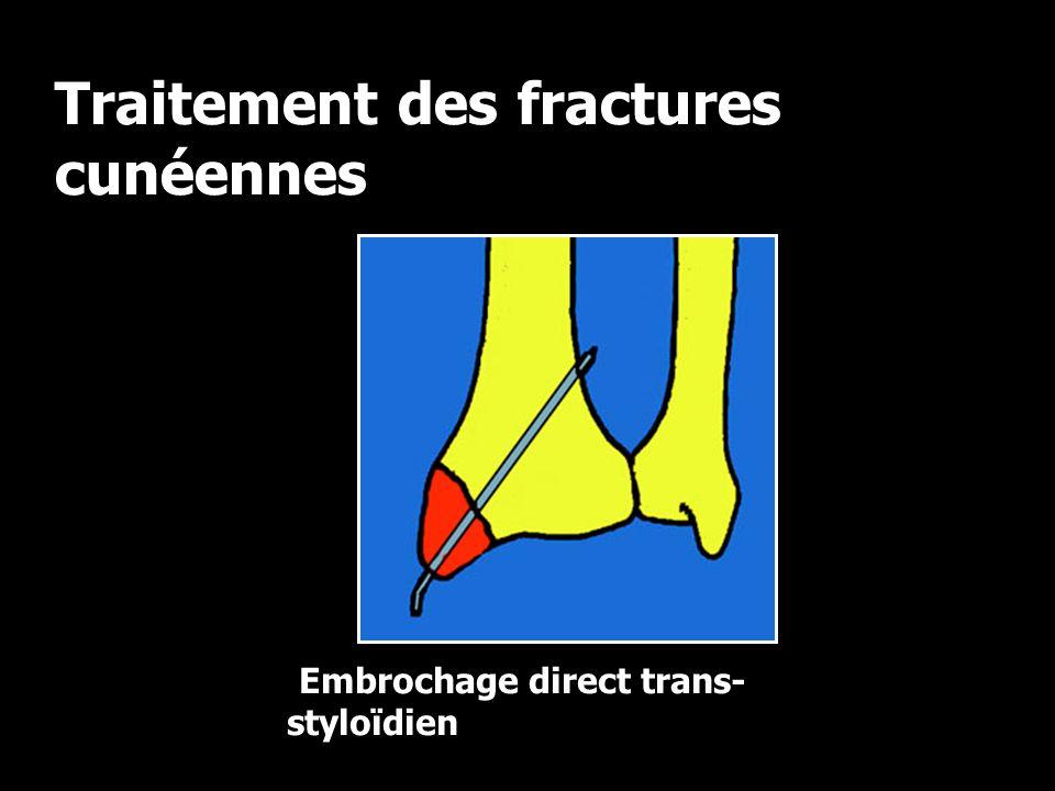 Traitement des fractures cunéennes