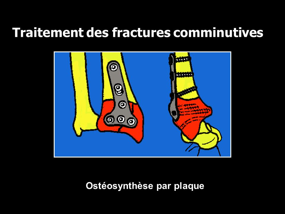 Traitement des fractures comminutives