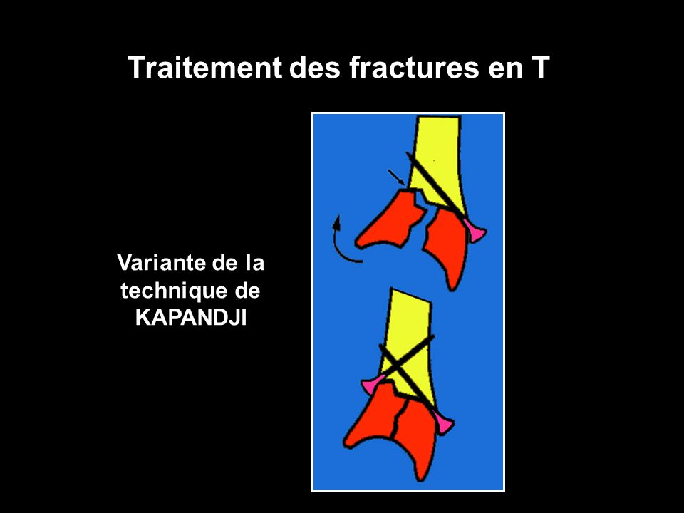 Traitement des fractures en T Variante de la technique de KAPANDJI