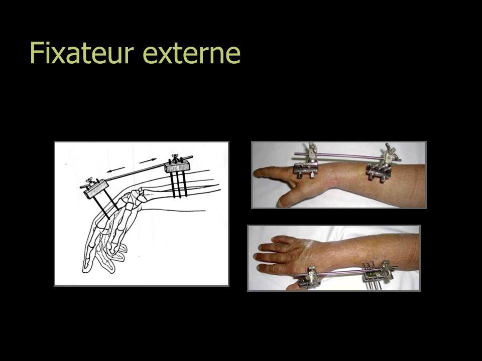 Fixateur externe