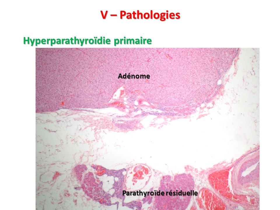 V – Pathologies Hyperparathyroïdie primaire Adénome