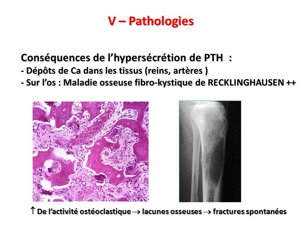 V – Pathologies Conséquences de l'hypersécrétion de PTH :
