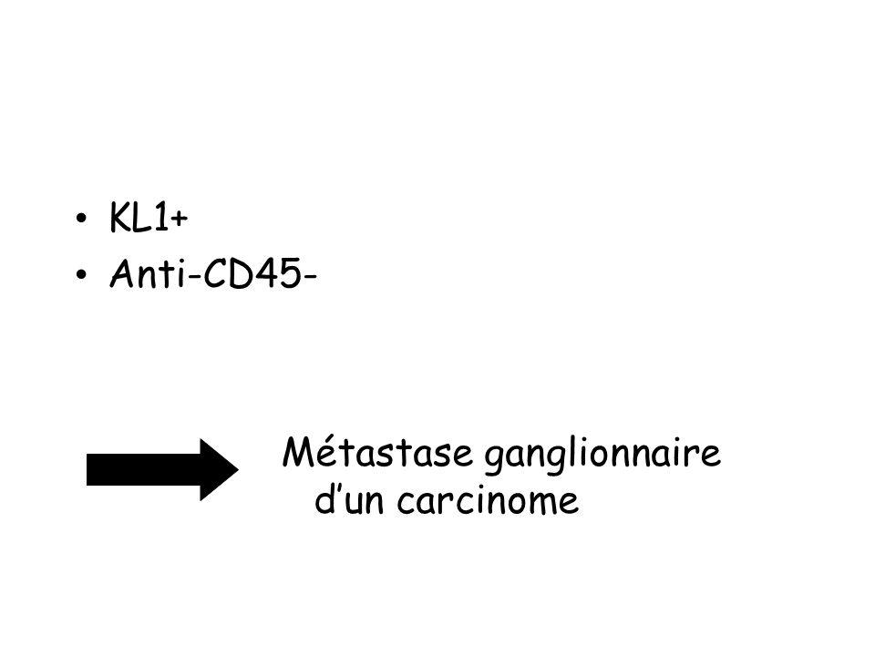 KL1+ Anti-CD45- Métastase ganglionnaire d'un carcinome