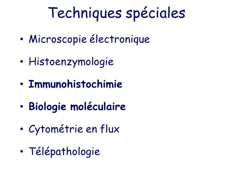 Techniques spéciales Microscopie électronique Histoenzymologie