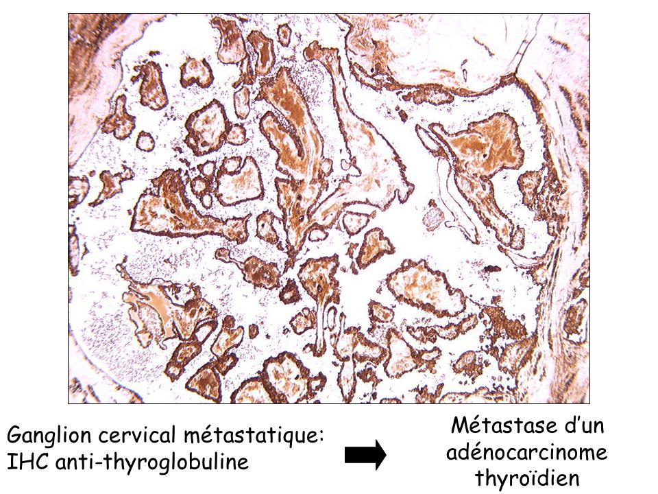 Métastase d'un adénocarcinome thyroïdien