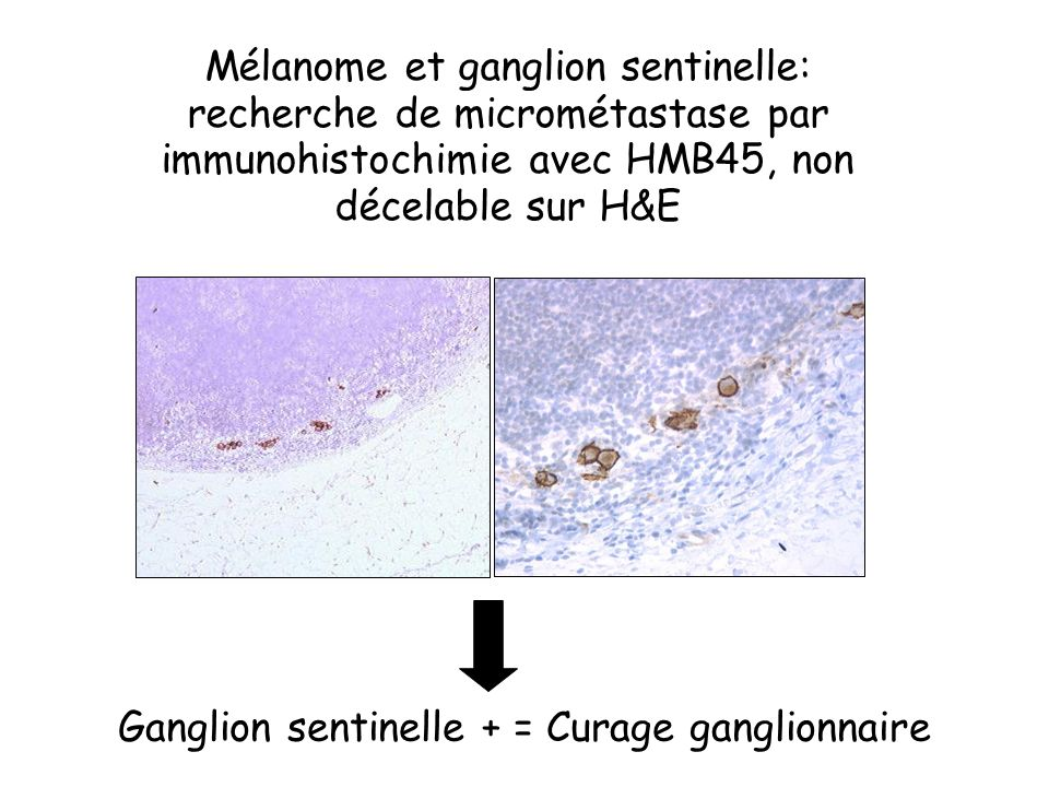 Ganglion sentinelle + = Curage ganglionnaire