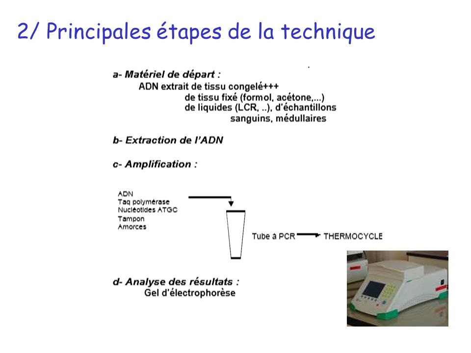 2/ Principales étapes de la technique