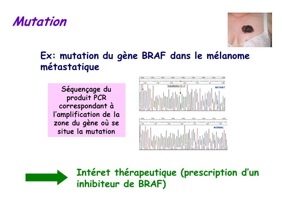Mutation Ex: mutation du gène BRAF dans le mélanome métastatique