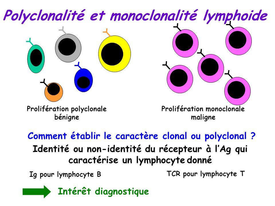 Prolifération polyclonale bénigne Prolifération monoclonale maligne