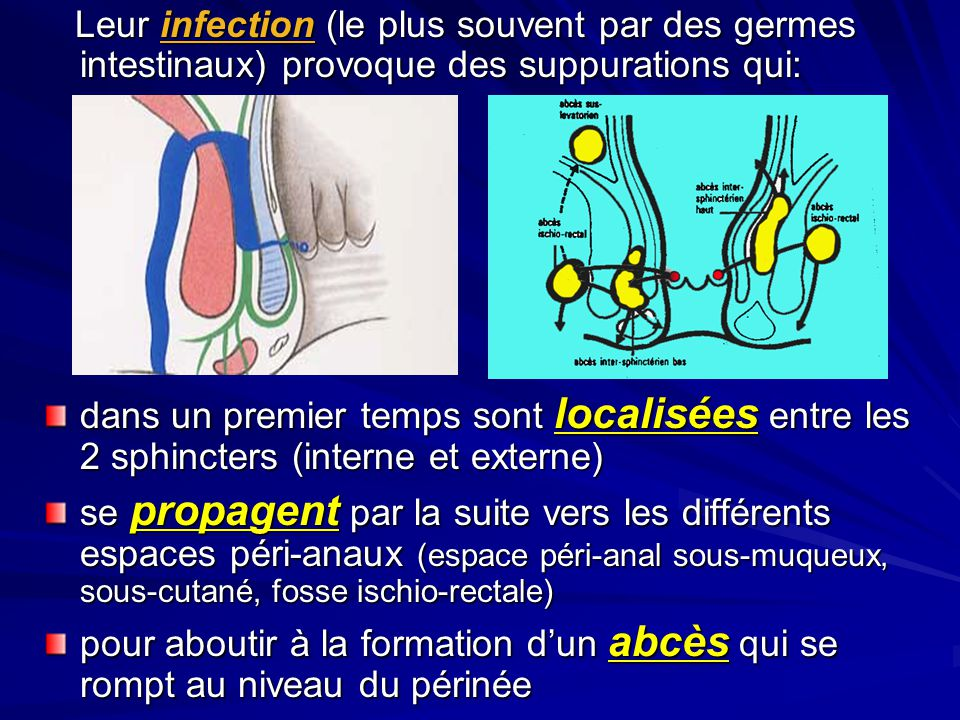 Leur infection (le plus souvent par des germes intestinaux) provoque des suppurations qui: