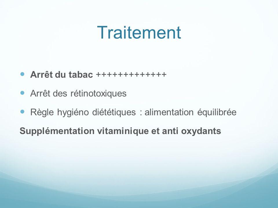 Pathologies ophtalmologiques - ppt video online télécharger