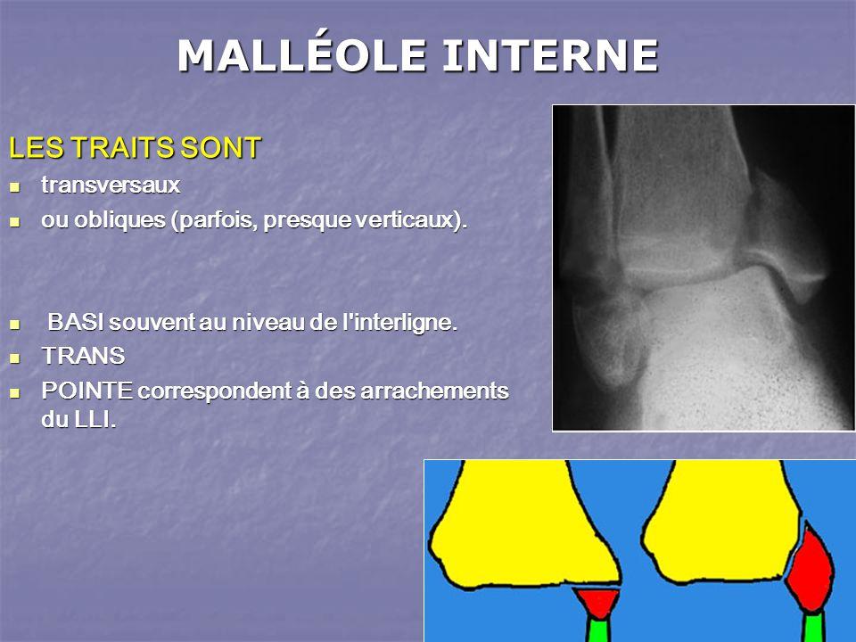 MALLÉOLE INTERNE LES TRAITS SONT transversaux