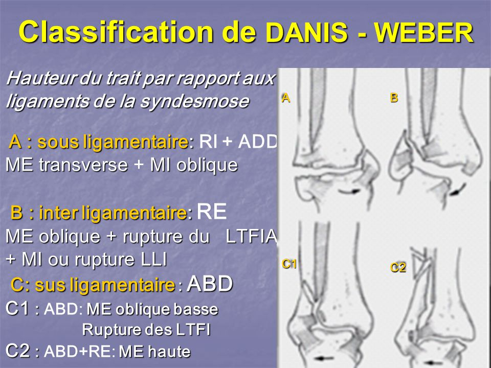 Classification de DANIS - WEBER