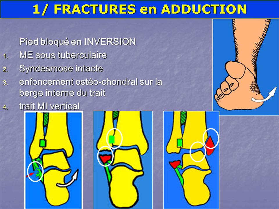 1/ FRACTURES en ADDUCTION