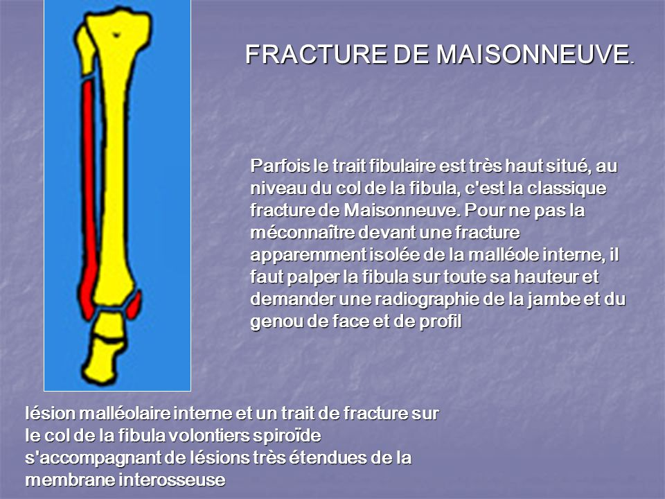 FRACTURE DE MAISONNEUVE.