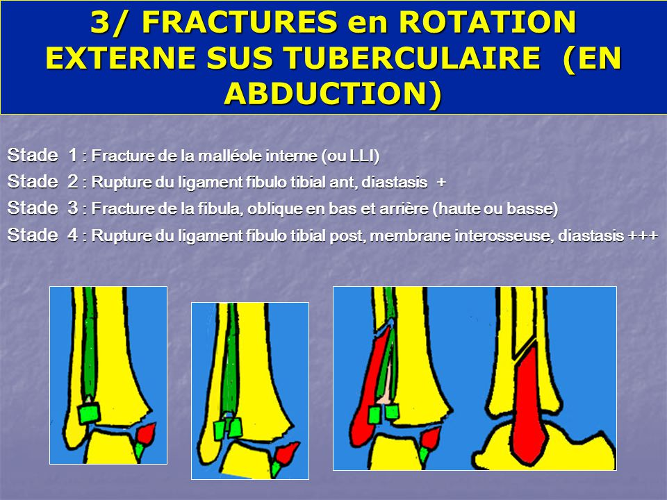 3/ FRACTURES en ROTATION EXTERNE SUS TUBERCULAIRE (EN ABDUCTION)