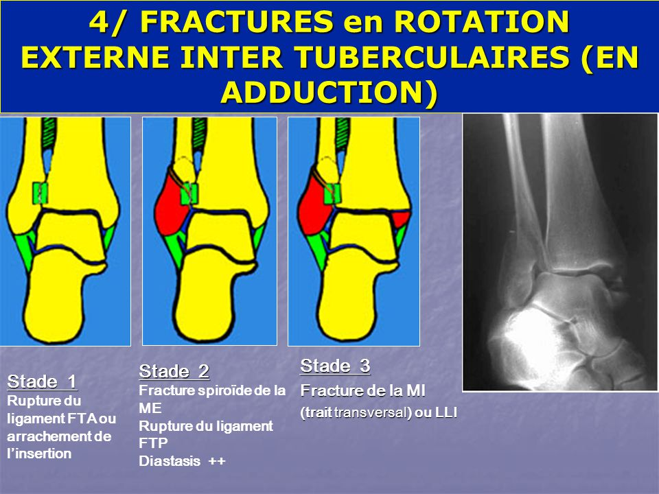 4/ FRACTURES en ROTATION EXTERNE INTER TUBERCULAIRES (EN ADDUCTION)