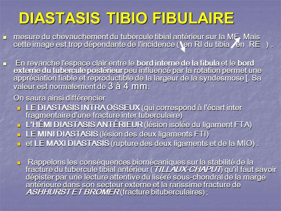 DIASTASIS TIBIO FIBULAIRE