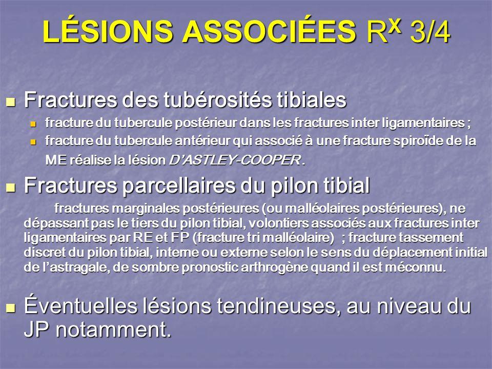 LÉSIONS ASSOCIÉES RX 3/4 Fractures des tubérosités tibiales