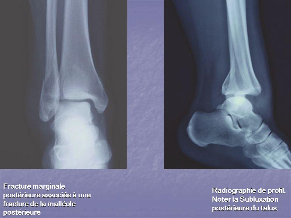 Fracture marginale postérieure associée à une fracture de la malléole postérieure