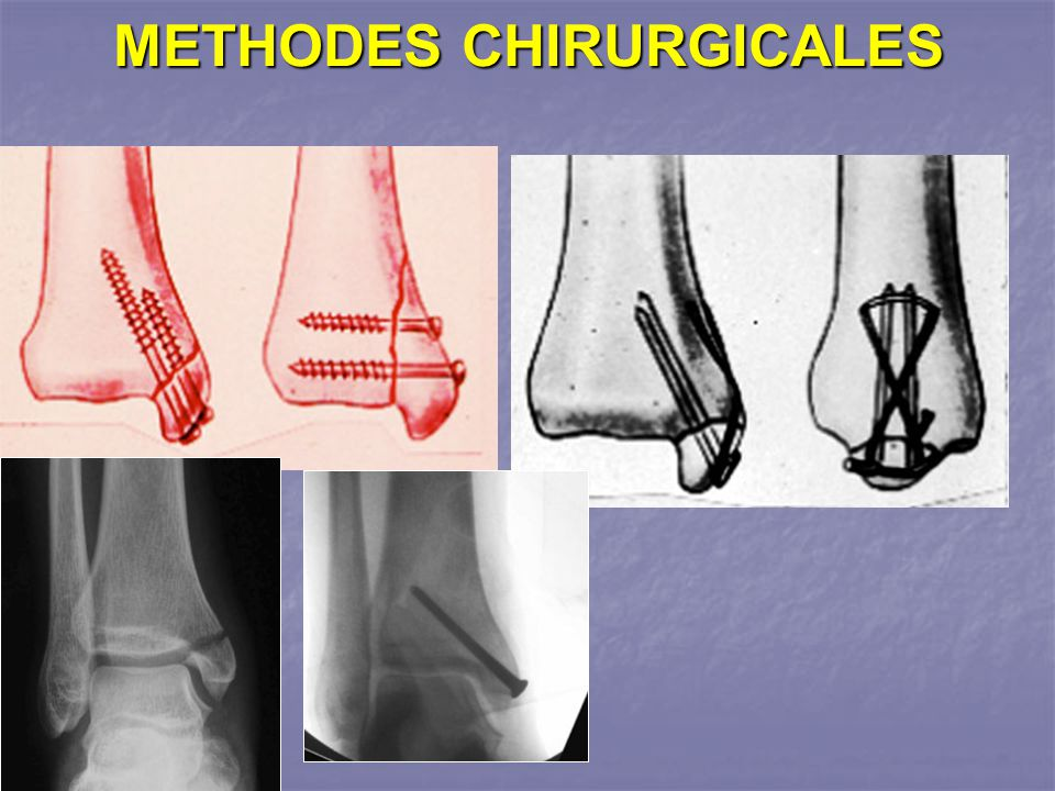 METHODES CHIRURGICALES