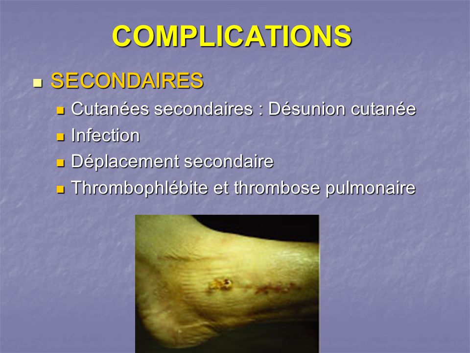 COMPLICATIONS SECONDAIRES Cutanées secondaires : Désunion cutanée