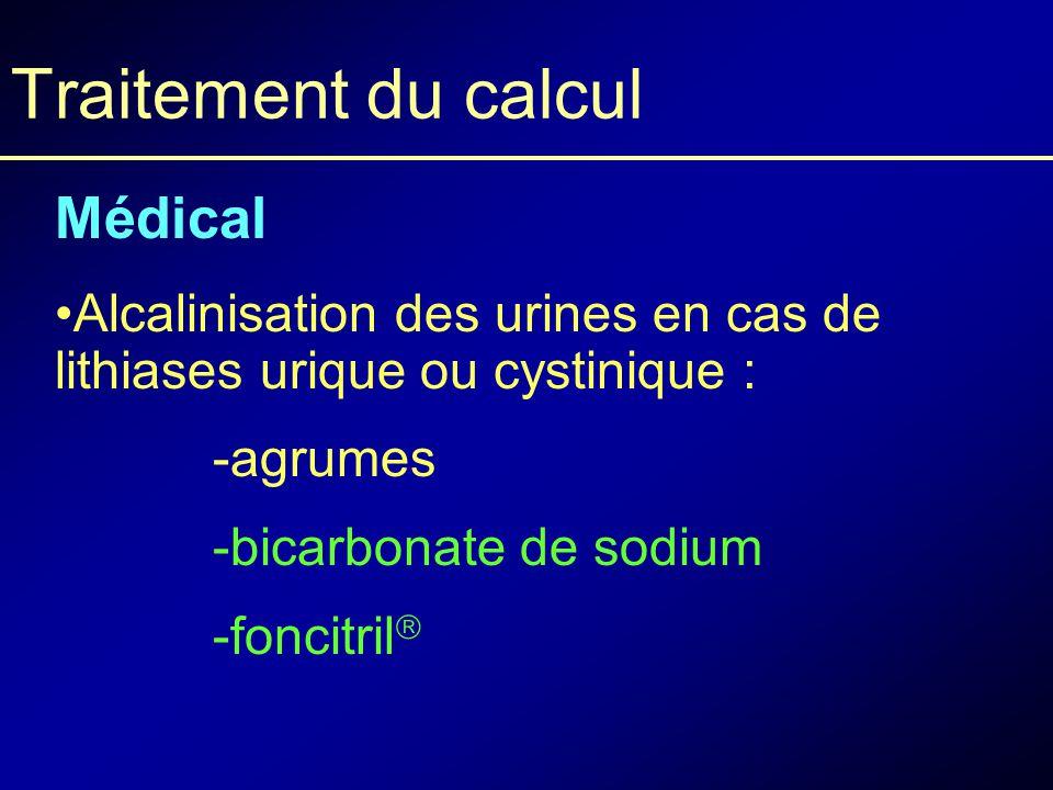 Lithiases urinaires et coliques néphrétiques - ppt video
