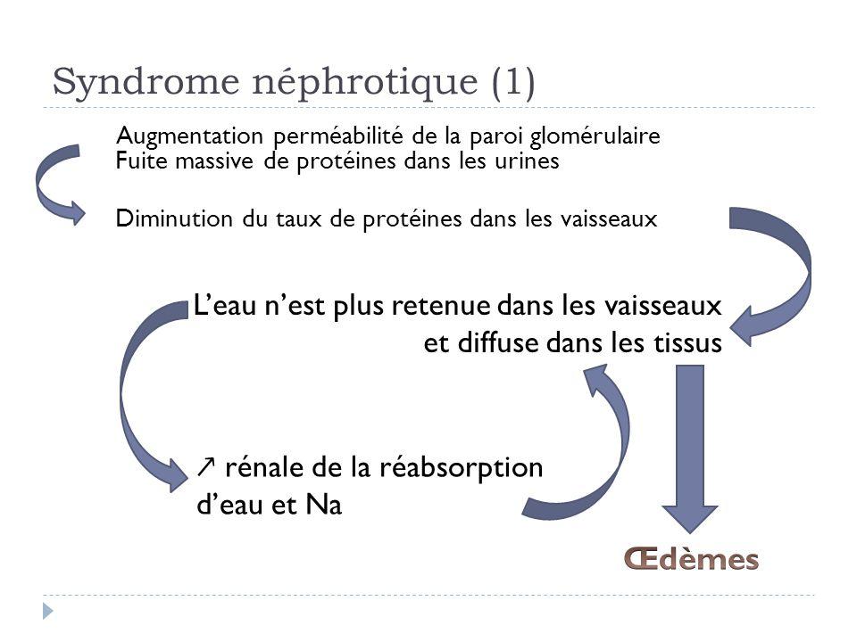 Infections urinaires de l enfant ppt video online for Fuite dans les wc