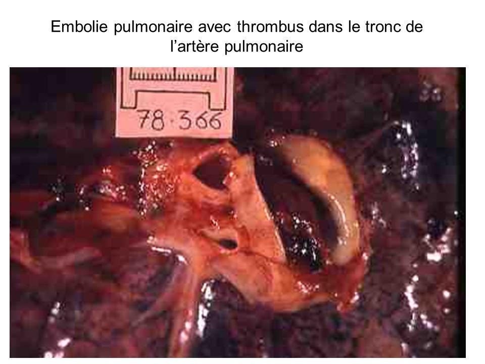 Embolie pulmonaire avec thrombus dans le tronc de l'artère pulmonaire
