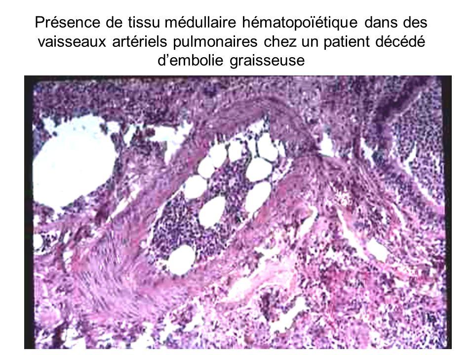 Présence de tissu médullaire hématopoïétique dans des vaisseaux artériels pulmonaires chez un patient décédé d'embolie graisseuse