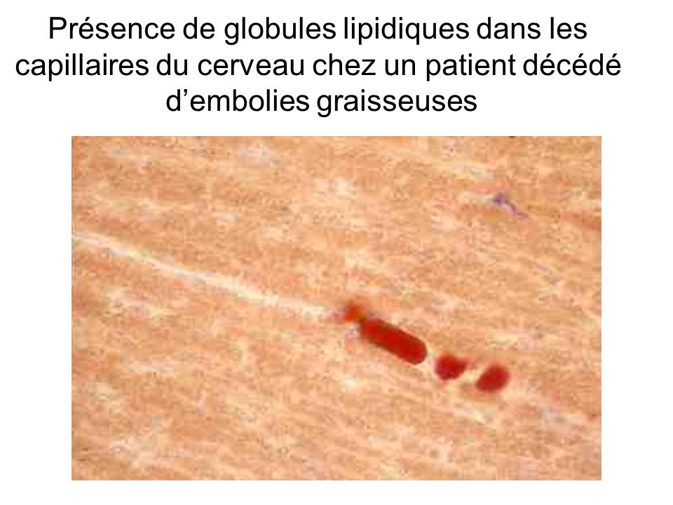 Présence de globules lipidiques dans les