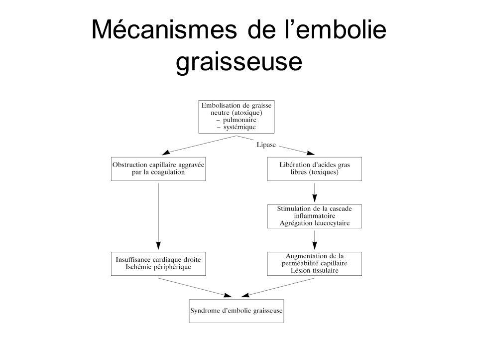 Mécanismes de l'embolie graisseuse