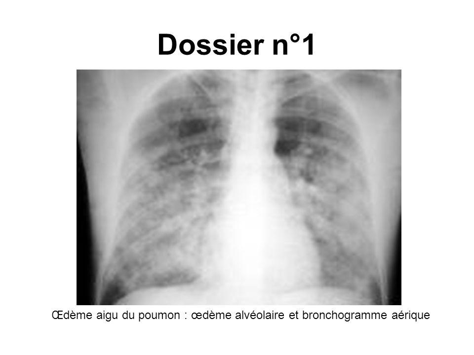 Dossier n°1 Œdème aigu du poumon : œdème alvéolaire et bronchogramme aérique