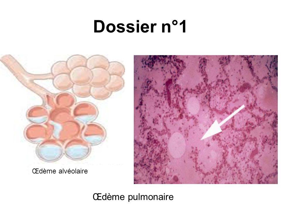 Dossier n°1 Œdème alvéolaire Œdème pulmonaire