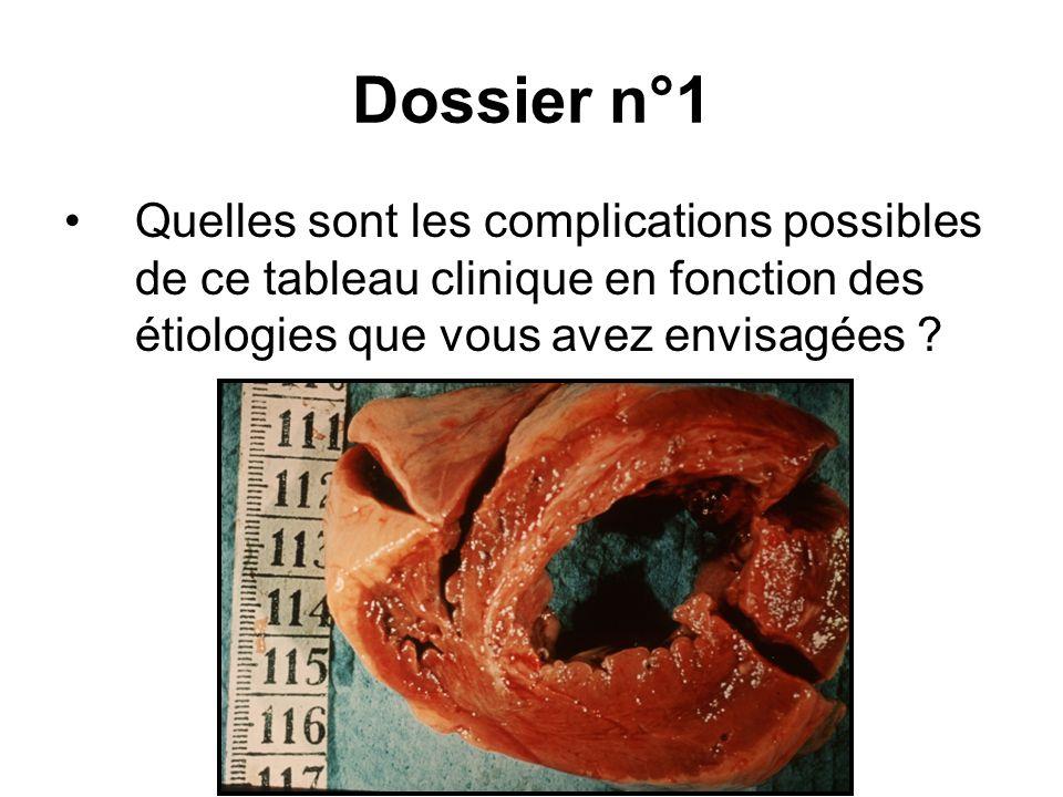 Dossier n°1 Quelles sont les complications possibles de ce tableau clinique en fonction des étiologies que vous avez envisagées