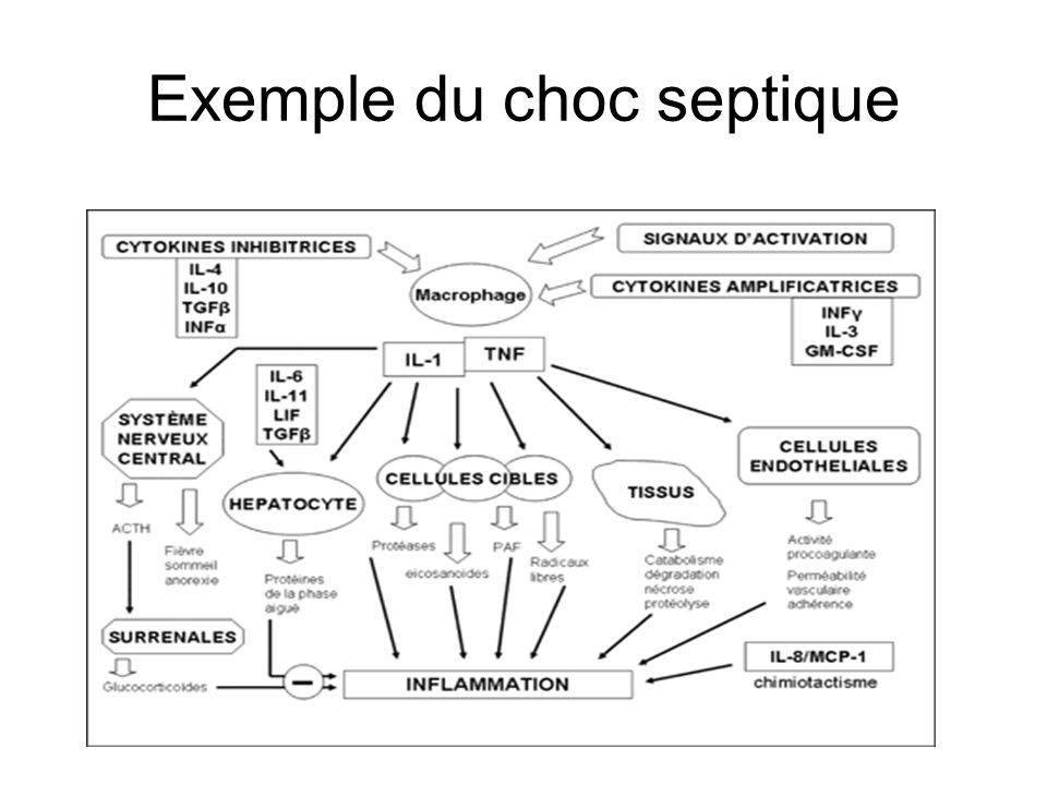 Exemple du choc septique