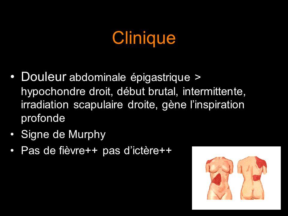 Clinique Douleur abdominale épigastrique > hypochondre droit, début brutal, intermittente, irradiation scapulaire droite, gène l'inspiration profonde.