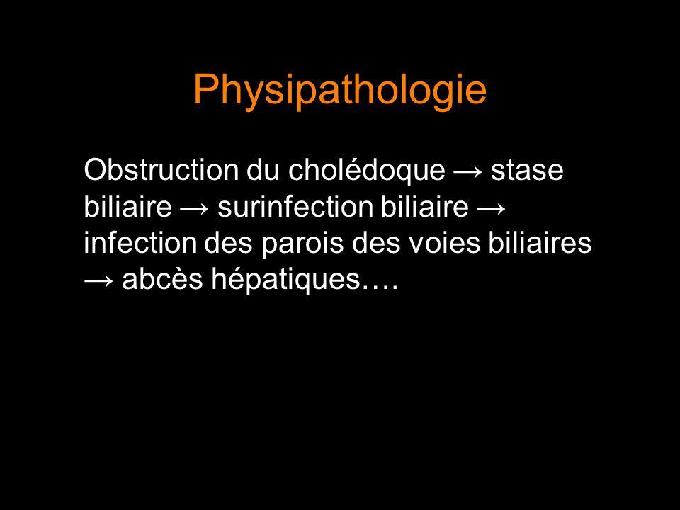 Physipathologie Obstruction du cholédoque → stase biliaire → surinfection biliaire → infection des parois des voies biliaires → abcès hépatiques….